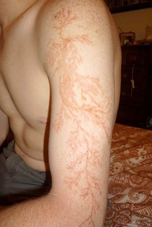 1.) After getting struck by lightning, you can be left with this weird tattoo pattern.