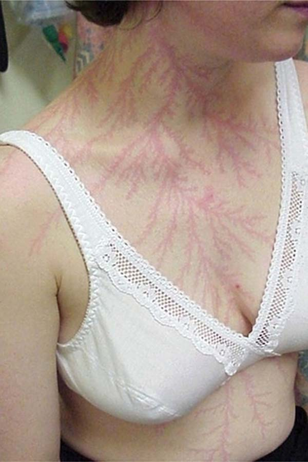 """It's called a """"Lichtenberg figure,"""" a temporary mark that consists of fractals."""